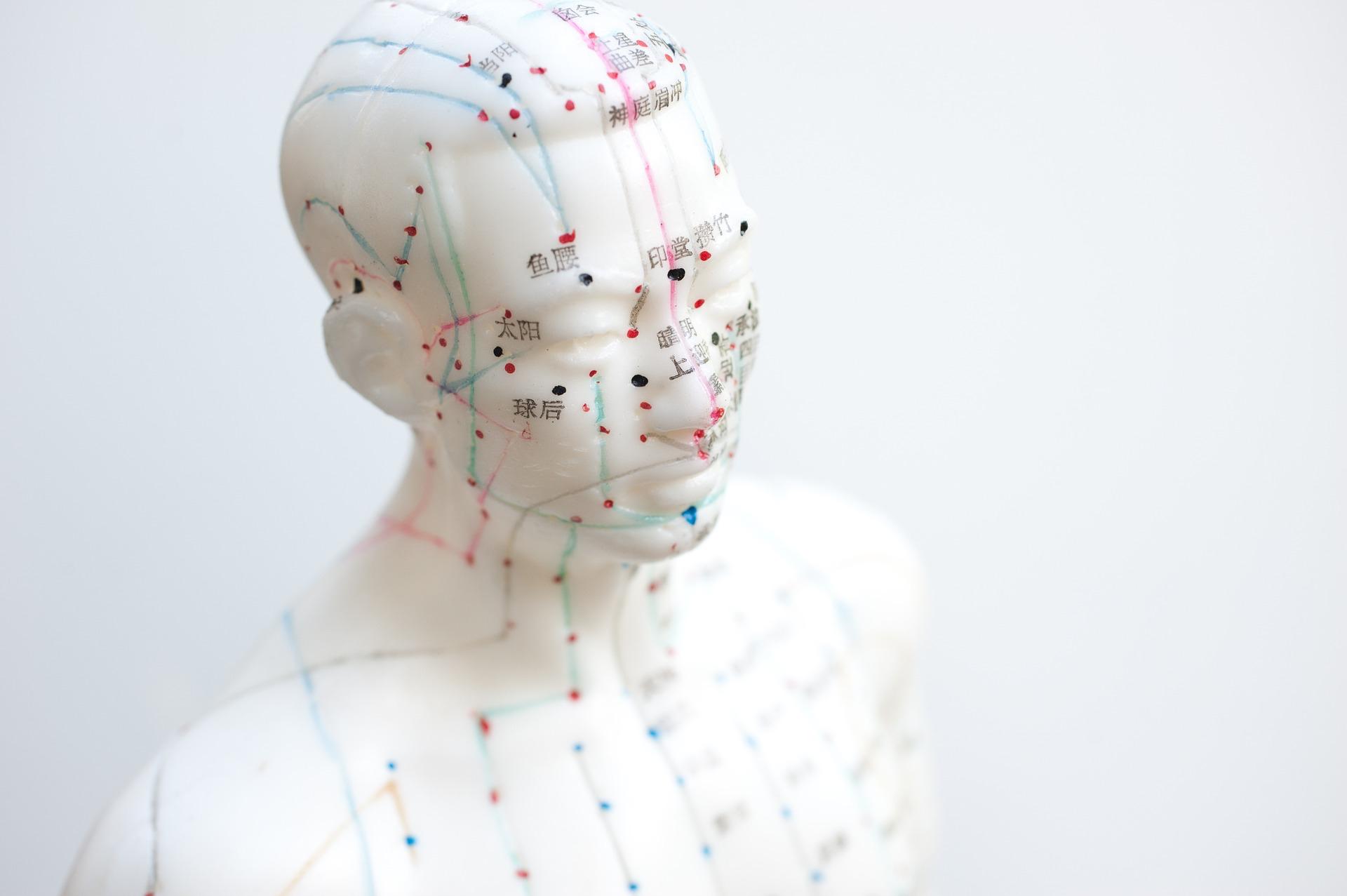 TCM | Akupunktur